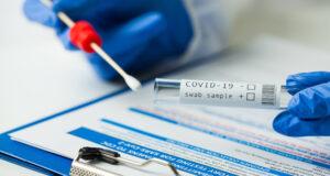 Canarias test PCR